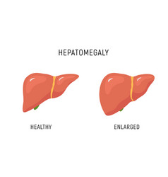 enlarged liver hepatomegaly disease icon human vector image