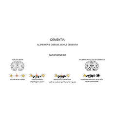 Dementia alzheimer s disease pathogenesis vector