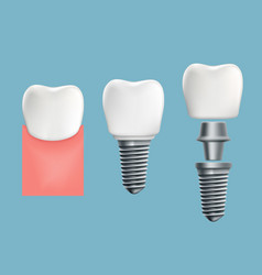Schematic infographics of human teeth and implant vector