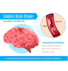 Ischemic brain stroke poster vector