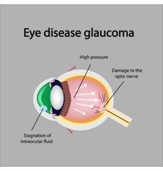 Glaucomatous eye violations causing glaucoma vector