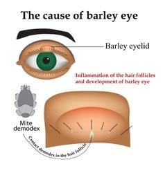 Diseases of the eye barley Causes of barley vector image