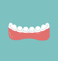 Retainer teeth dental concept vector