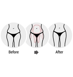 plastic surgery hips vector image