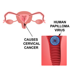 Human papilloma virus causes cervical cancer the vector