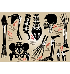 Collection of Orthopedic surgery vector image