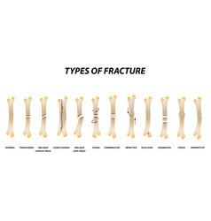 Types fracture fracture bone set infographics vector