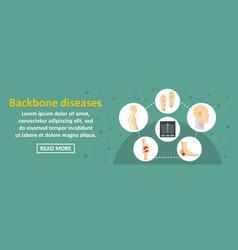 backbone diseases banner horizontal concept vector image