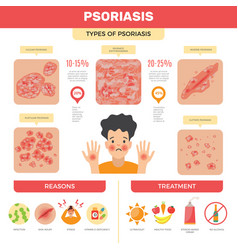psoriasis infographic human skin infection vector image