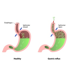 Stomach disease vector image vector image