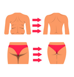set of white woman body part fat and sporty body vector image