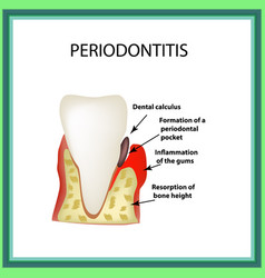 periodontitis dental disease inflammation of the vector image vector image