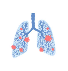 coronavirus damaged human lungs pandemic covid-19 vector image