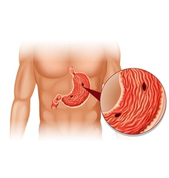 Stomach Ulcer in human body vector image