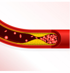 Thrombosis of artery - cholesterol buildup vector