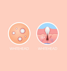 Skin whitehead pimples acne type face pore vector