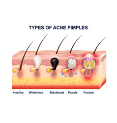 skin acne anatomy composition vector image