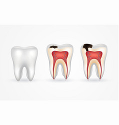 Tooth caries and healthy tooth superficial caries vector