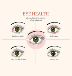 Most common eye problems vector