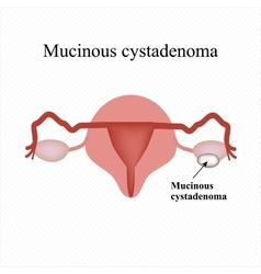 Mucinous cyst on the ovary Cystadenoma Ovary vector image
