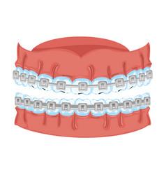Human teeth with orthodontics vector