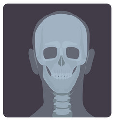 Frontal radiograph of skull x-radiation picture vector