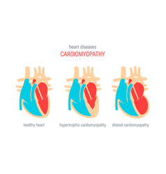 heart disease concept in flat style vector image