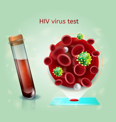 Hiv virus blood test realistic concept vector