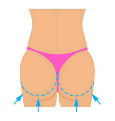 buttocks plastic correction icon cartoon style vector image