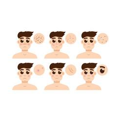 Men skin problem acne men vector