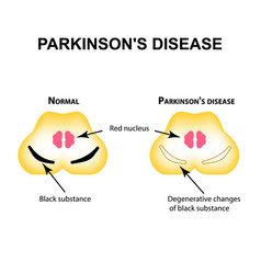 Parkinsons disease degenerative changes vector