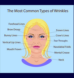 common types of facial wrinkles cosmetic surgery vector image
