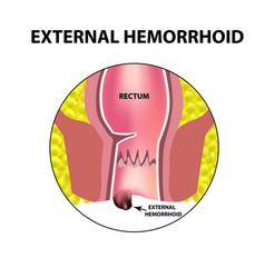 Hemorrhoids external rectum structure vector