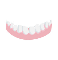 Human lower jaw gum with crooked teeth isolated vector