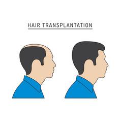 Hair transplantation vector