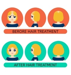 Balding woman before and after treatment vector