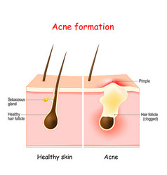 Acne inflamed pimple on human skin vector