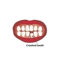 Crooked teeth Orthodontics Infographics vector
