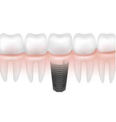 metal tooth implant vector image