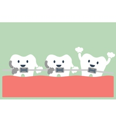 teeth orthodontics vector image