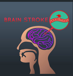 Brain stroke icon design logo vector
