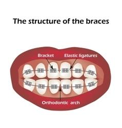 The structure braces orthodontics vector
