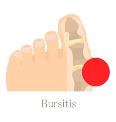 Bursitis icon cartoon style vector