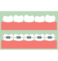 Teeth orthodontics vector