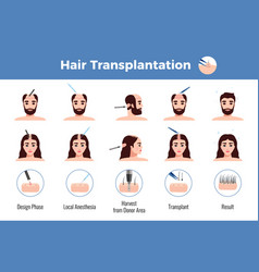 hair transplantation men women infographics vector image