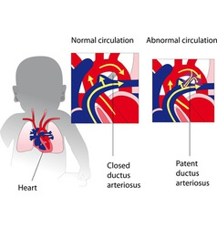patent ductus arteriosus medicine poster vector image vector image