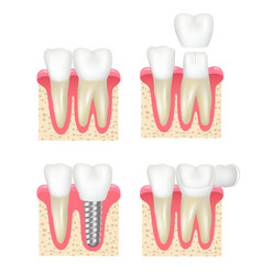 dental crown tooth veneer implants healthy cavity vector image