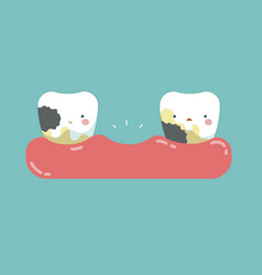 decayed teeth teeth and tooth concept of dental vector image
