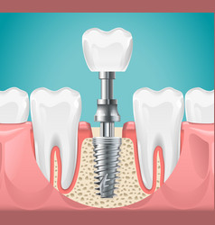 Dental surgery tooth implant cut vector
