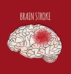 Brain stroke insult medicine health vector